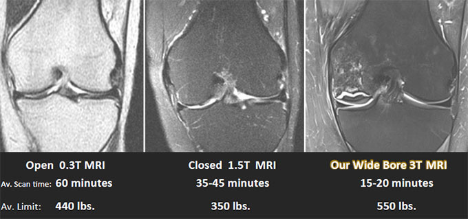 2. Expect the best quality with our 3T MRI